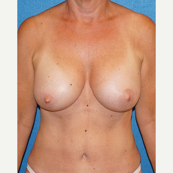 55 year old woman treated with Breast Augmentation after 3576662
