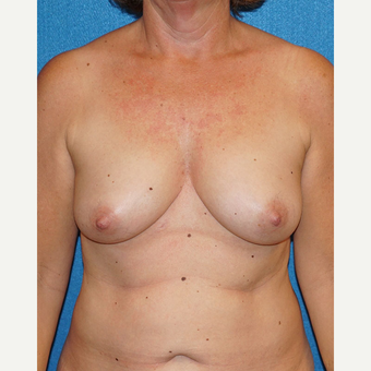 55 year old woman treated with Breast Augmentation before 3576662