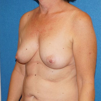 55 year old woman treated with Breast Augmentation 3576662