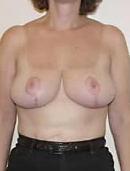 Breast Reduction after 1029953
