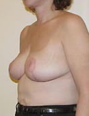 Breast Reduction 1029953