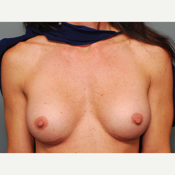 38 y/o Inframammary Sub Muscular Breast Augmentation after 3066094