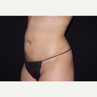 25-34 year old woman treated with Liposuction after 3055076