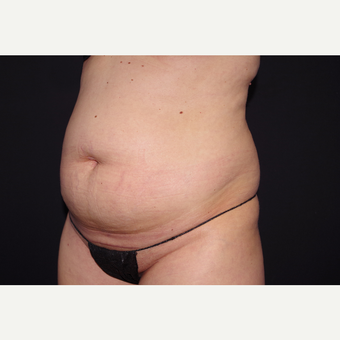 25-34 year old woman treated with Liposuction before 3055076