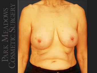 bilateral mastectomy with tissue expanders; silicone implant exchange; nipple reconstruction and areola pigmentation