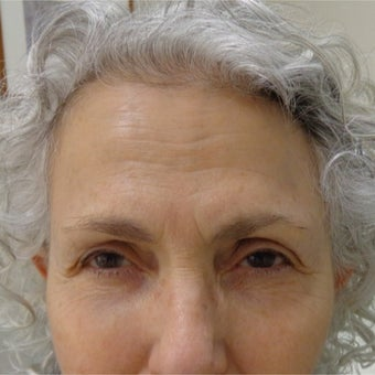 75 and up year old woman treated with Eye Bags Treatment