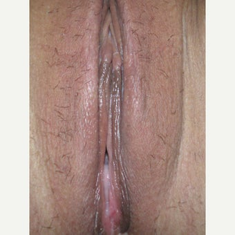 31 year old woman treated with simple V-wedge LP Labiaplasty