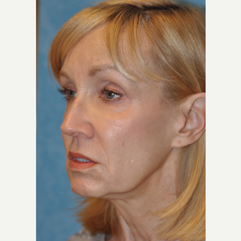 Facelift results before 3732694