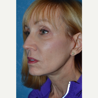 Facelift results after 3732694