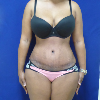 40 y.o.female – abdominoplasty (tummy tuck) with liposuction of the flanks after 3797477