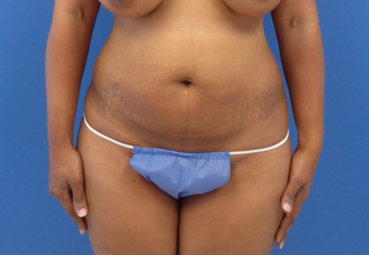 40 y.o.female – abdominoplasty (tummy tuck) with liposuction of the flanks before 3797477