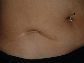 Scar revision of appendectomy scar before 335023