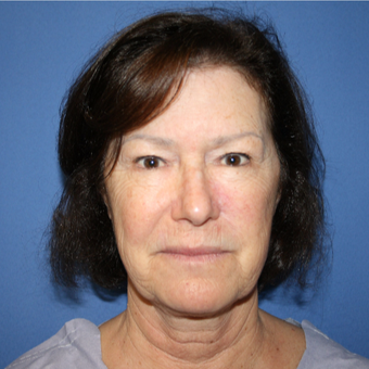 55-64 year old woman treated with Facelift before 2994460