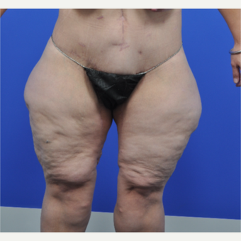 25-34 year old female treated with Body Lift and Inner Thigh Reduction after 3002436