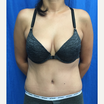 35-44 year old woman treated with Tummy Tuck after 3201276