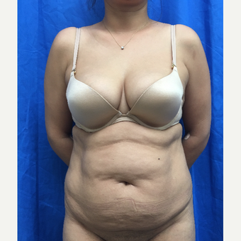 35-44 year old woman treated with Tummy Tuck before 3201276