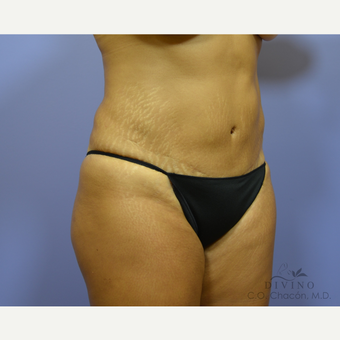 45-54 year old woman treated with Tummy Tuck before 3421973