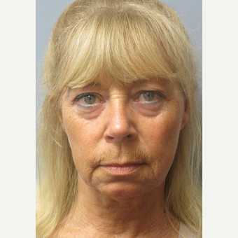 55-64 year old woman treated with Facelift before 3538838