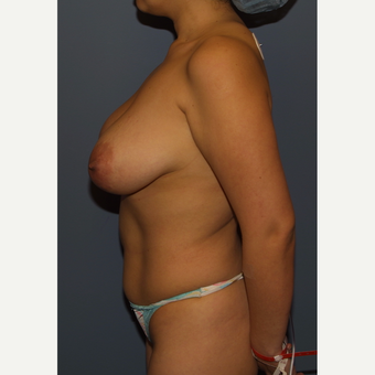 25-34 year old woman treated with Breast Reduction before 3512442