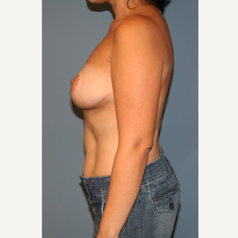 25-34 year old woman treated with Breast Reduction after 3512442