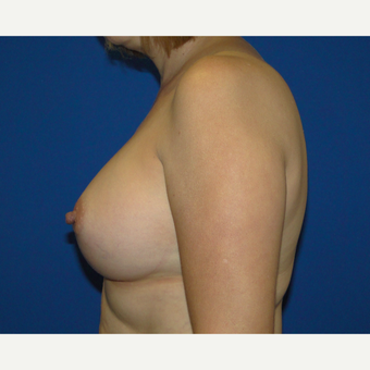 Breast Augmentation with 400 cc Silicone Implants after 3537366