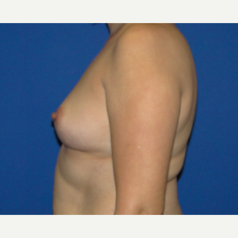 Breast Augmentation with 400 cc Silicone Implants before 3537366