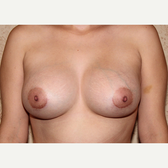 Silicone Implants - Breast Augmentation after 3325098