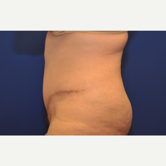 55-64 year old woman treated with Tummy Tuck after 3102833