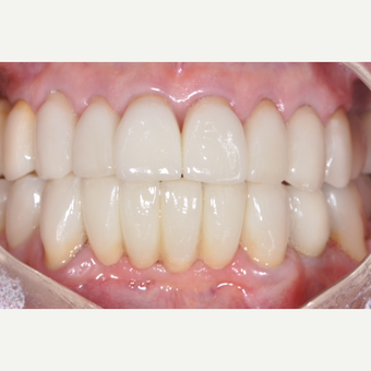 Before and After All Porcelan  Crowns after 3161939