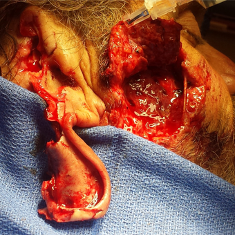 Landscaper's masonry saw blade shattered and hit his ear and face - Micro reconstructed.