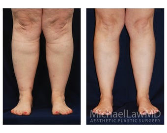 Lower Leg Liposuction before 904277