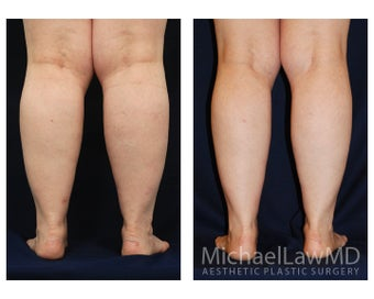 Lower Leg Liposuction 904277