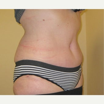 Tummy tuck with liposculpture and creation of new belly button after 2520422