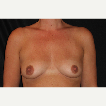 35-44 year old woman treated with Breast Augmentation before 3201224