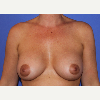 35-44 year old woman treated with Breast Augmentation after 3201224