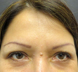 Treatment for Forehead Lines and Crows Feet after 1357220