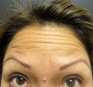 Treatment for Forehead Lines and Crows Feet before 1357220