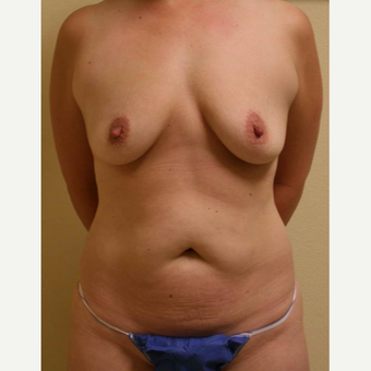 35-44 year old woman treated with Mommy Makeover before 3434576