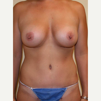 35-44 year old woman treated with Mommy Makeover after 3434576