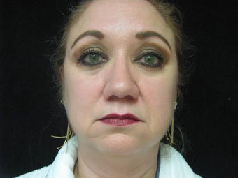 Face, 56 Year Old Female before 1117318