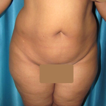 35-44 year old woman treated with Tummy Tuck before 3221773