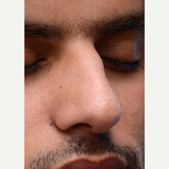 Non Surgical Rhinoplasty before 2725428