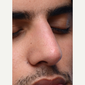 Non Surgical Rhinoplasty after 2725428