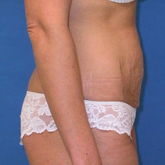 35-44 year old woman treated with Tummy Tuck before 3496748