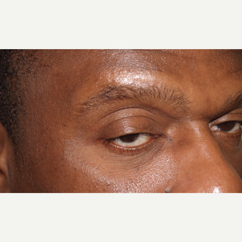 45-54 year old man treated with Eyebrow Transplant before 3522742