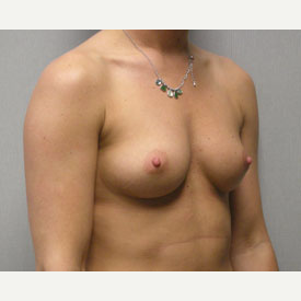 Breast Augmentation before 3680733