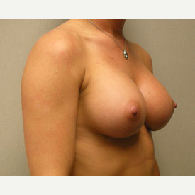 Breast Augmentation after 3680733