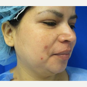 Chin Liposuction before 3141675