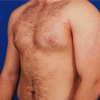 25-34 year old man with Gynecomastia treated with Male Breast Reduction before 3059447