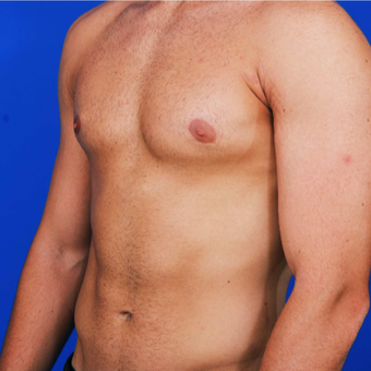 25-34 year old man with Gynecomastia treated with Male Breast Reduction after 3059447